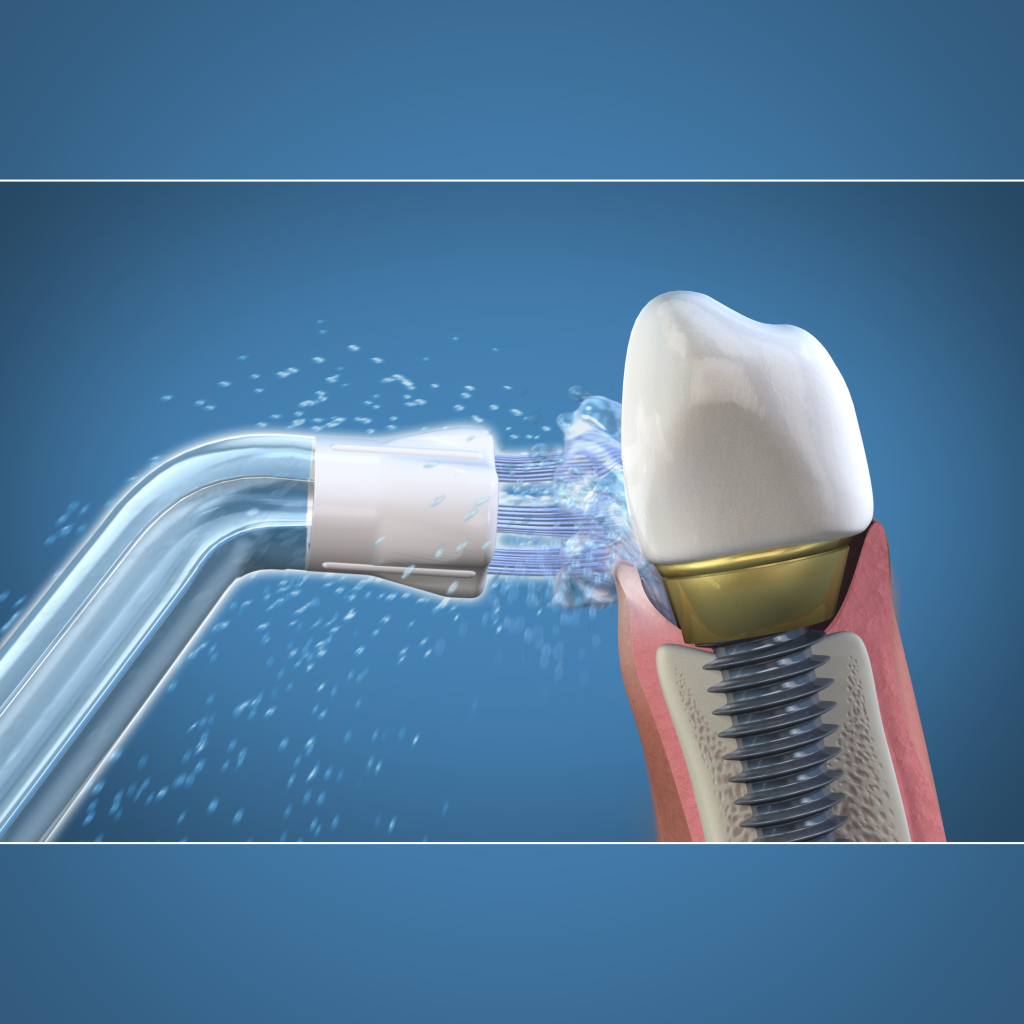 Implantų priežiūra